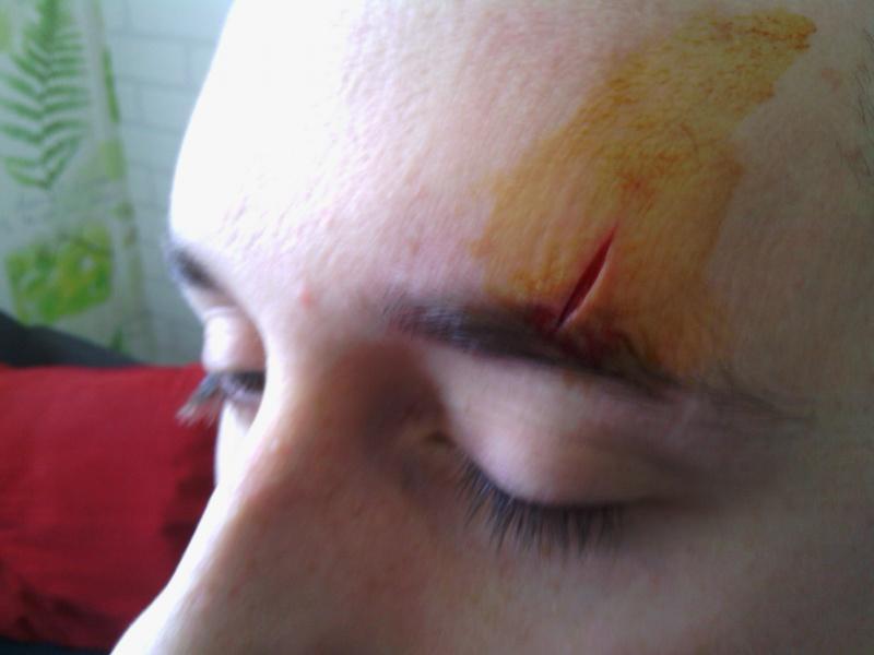 Coup de machette a la tête, accident bêtes ! 847626IMG20130604180526