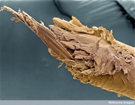 رحلة ميكروسكوبية داخل جسد الانسان 3224622