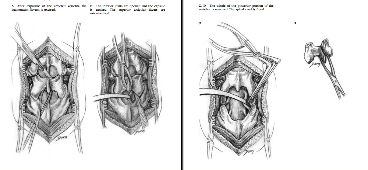 An Atlas of Surgical Anatomy 433227SURGERY2