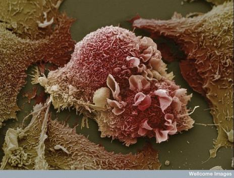 رحلة ميكروسكوبية داخل جسد الانسان 44788410