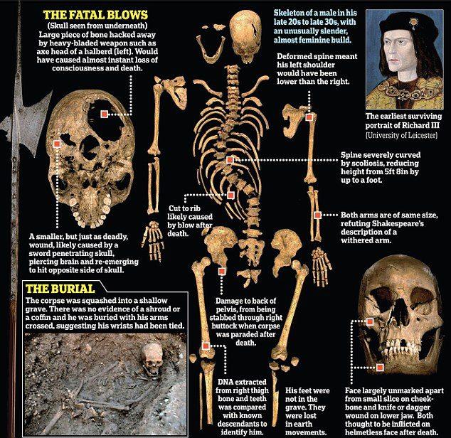 Localizan los restos de Ricardo III, el último rey inglés muerto en combate Woundsofrichardiii