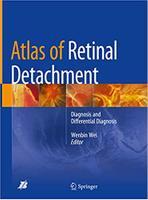 Atlas of Retinal Detachment VcQc8l