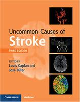 Uncommon Causes of Stroke 3e ZkB6f3