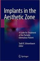 Implants in the Aesthetic Zone IRyOCs