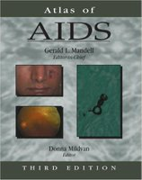 Atlas of AIDS 3e QH4XSS