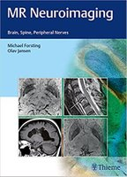 MR Neuroimaging: Brain, Spine, and Peripheral Nerves H1Sp27
