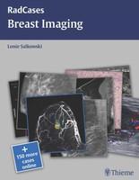 Breast Imaging (Radcases) 1st edition Edition Dj6kRT
