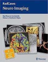 Radcases Neuro Imaging EreeJc