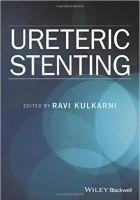 Ureteric Stenting FDZSG6