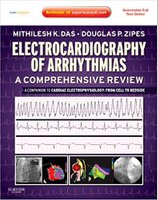 Electrocardiography of Arrhythmias: A Comprehensive Review: A Companion to Cardiac Electrophysiology: From Cell to Bedside UfZaAb