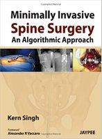 Minimally Invasive Spine Surgery: An Algorithmic Approach 7dFQuS