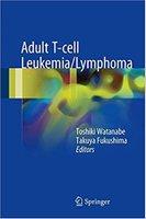 Adult T-cell Leukemia Lymphoma XIq4Pf