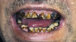 Higiene,Salud y Supervivencia...Parte I...La Dentadura. CuNfjk